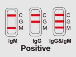 Positive antibody test.
